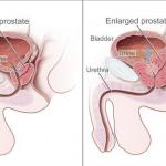 Simptomi bolesti prostate i prirodni lijekovi: pelud, kopriva, afrička šljiva, sjemenke bundeve…